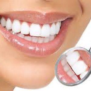 Tips Cara Memutihkan Gigi Dengan Cepat secara alami