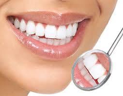 Permalink to Tips Cara Memutihkan Gigi Dengan Cepat, Biar Senyum-mu Makin Menawan